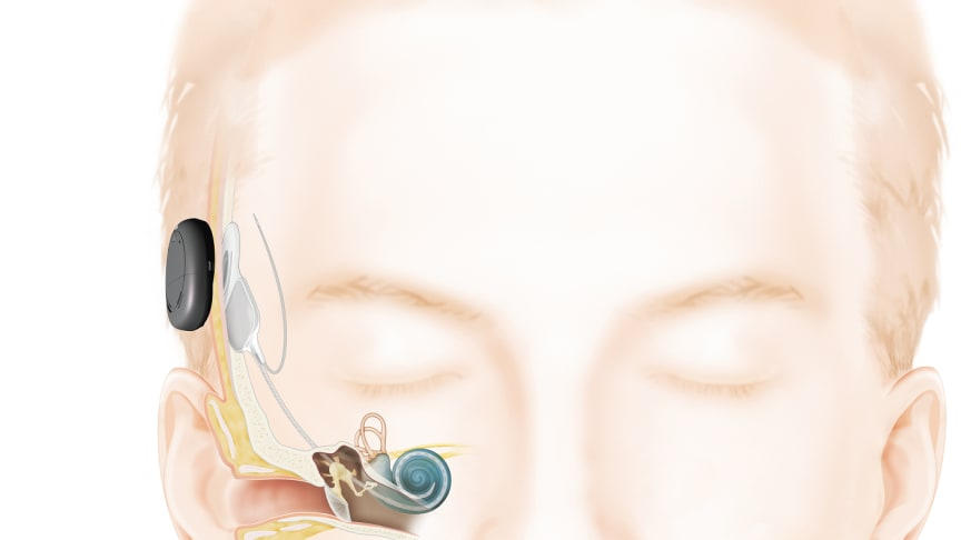 Mit dem Zweiten hört man besser - Cochlear™ Kanso® ist der weltweit einzige frei vom Ohr getragene CI-Soundprozessor mit zwei Mikrofonen (Abbildung: Copyright Cochlear Limited ©)