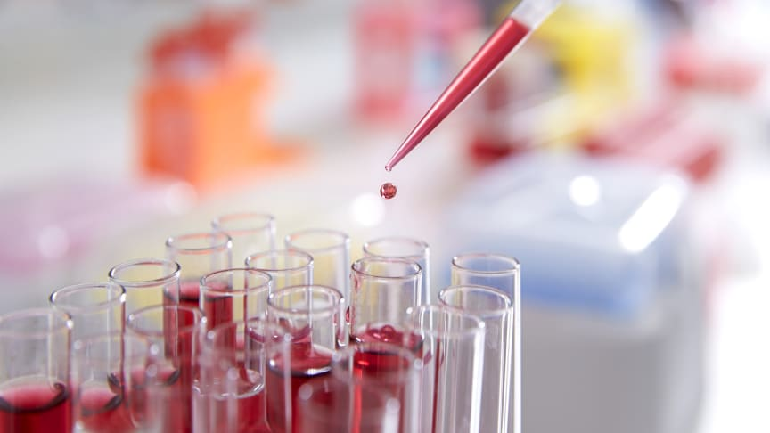 Miljonbelopp till sepsisforskning på Högskolan från KK-stiftelsen