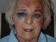 Appeal after elderly woman attacked in Lambeth