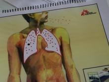 Alarmerande ökning av multiresistent tuberkulos