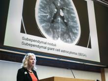 Snart kan små barn behandlas mot sällsynt hjärntumör