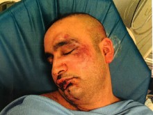 Appeal for witnesses to violent assault