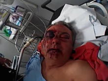 Image of cab driver's injuries