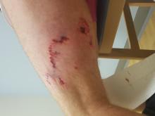Injury to PCs arm