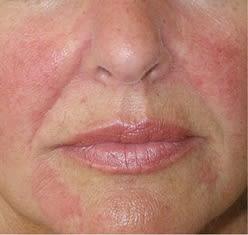 hud sygdom