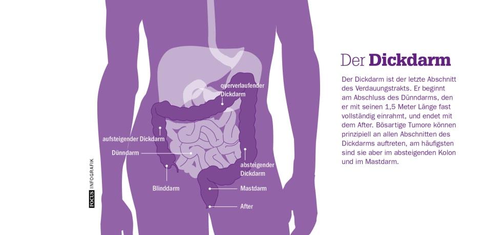 Der Dickdarm. FOCUS Infografik - Felix Burda Stiftung