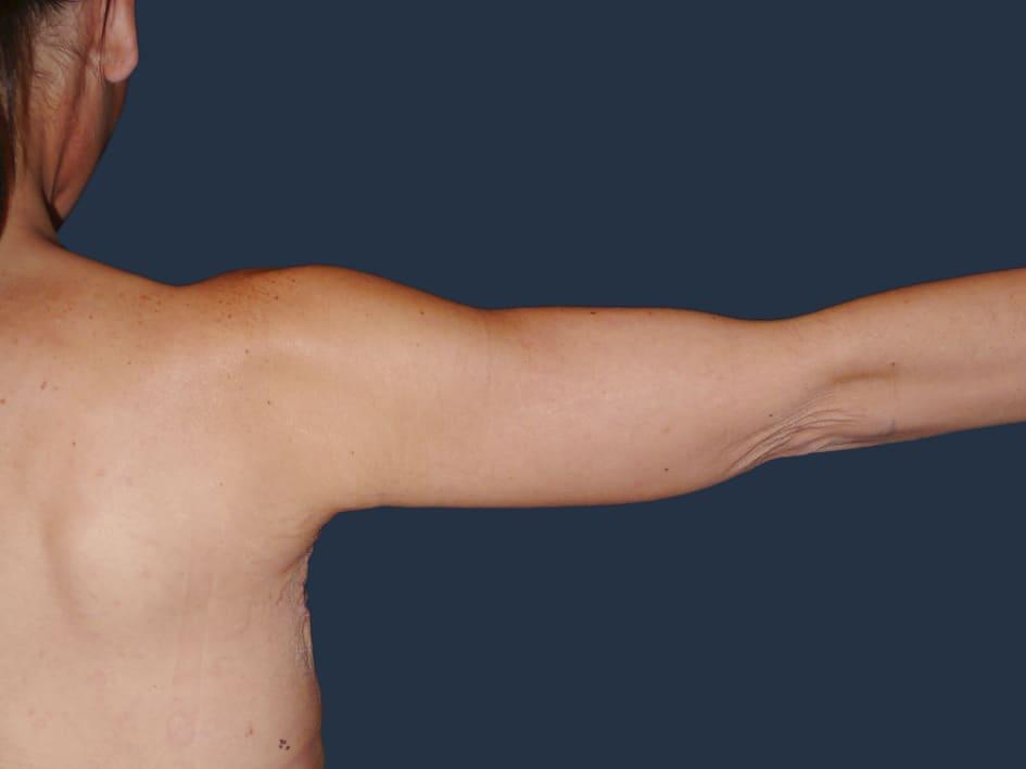 hudöverskott efter viktnedgång