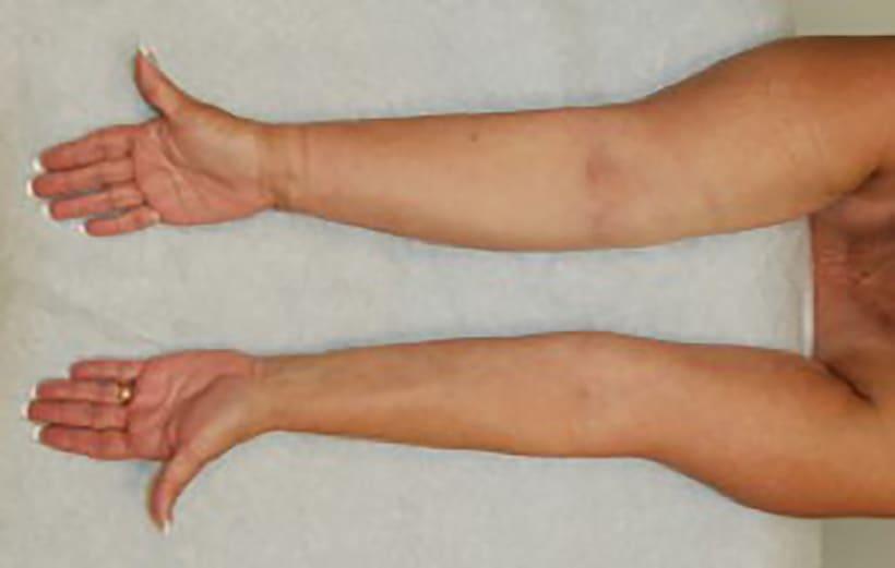 lymfkörtlar i armhålan