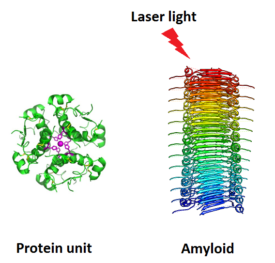 Lasers might be the cure for brain diseases such as