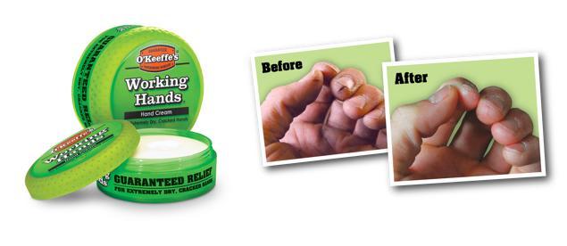 handkräm extremt torra händer