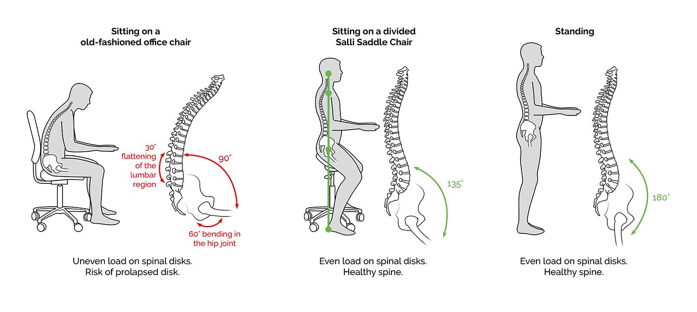 Back Pain Is A Global Epidemic Salli