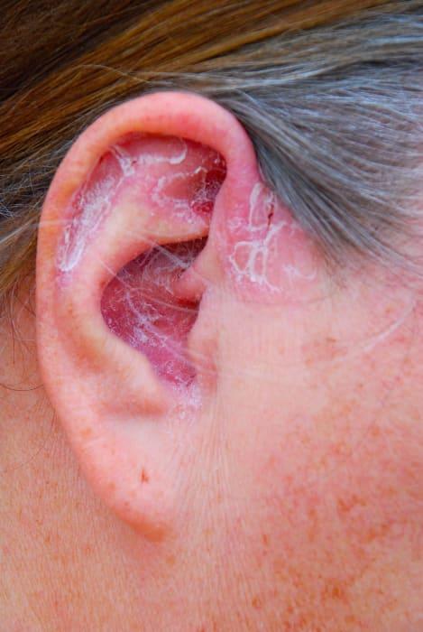 psoriasis hårbotten