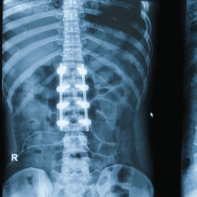 Spinal Fusion in Global Market Forecast 2018-2025 By Top Manufacturers Trauson, Biomet, Medtronic, Invibio, MicroPort and Others