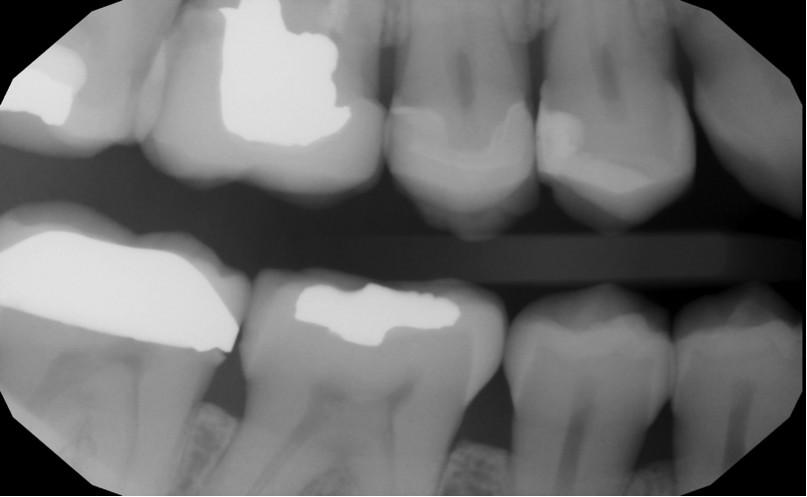 Digital intraoral bitewings