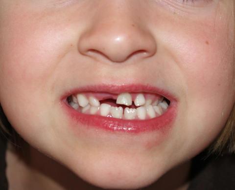 Stora skillnader mellan små barns tandhälsa - MP-förslag ska vända utvecklingen