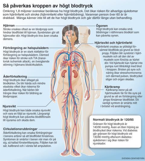 symtom högt blodtryck