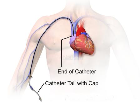 Global Angiography Catheter Market Analysis Regional Outlook, Segments And Forecast To 2021 with top key players - Terumo Corporation, Boston Scientific Corporation, St. Jude Medical, Inc and others
