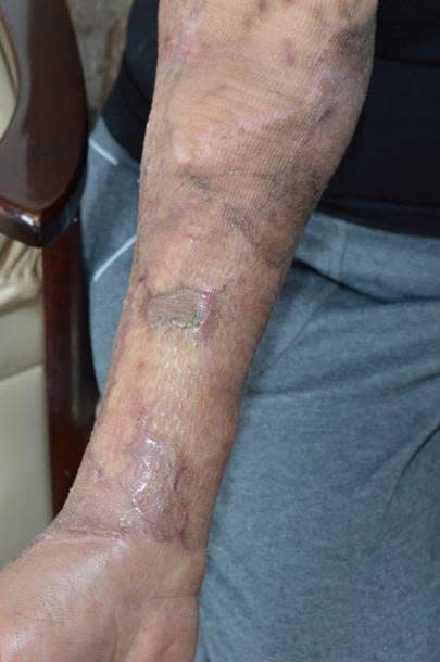 Burn suffered by 69-year-old woman attacked by Whealan