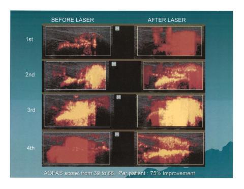 Erchonia laser inom veterinärvård