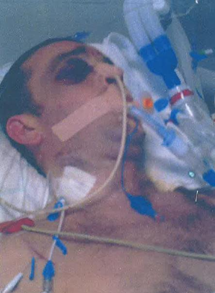 Marcus Bouskill in hospital following the assault