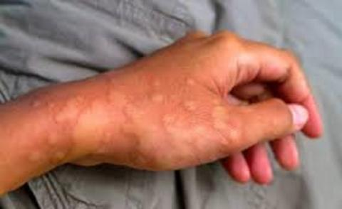 Rare Inflammatory Disease Treatment Market Size, Share and Manufacture Development Analysis Report 2027