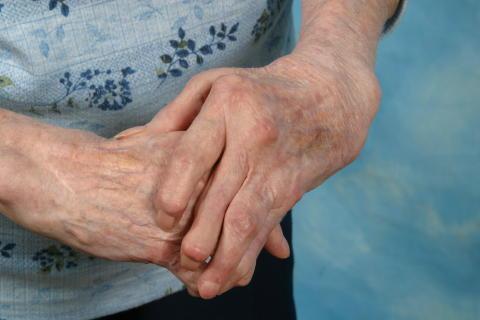 Felställningar i händer vid reumatoid artrit