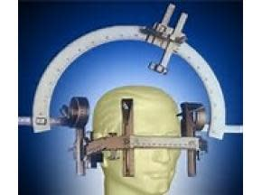 Global Stereotactic Surgery Devices Market Professional Survey Report 2017