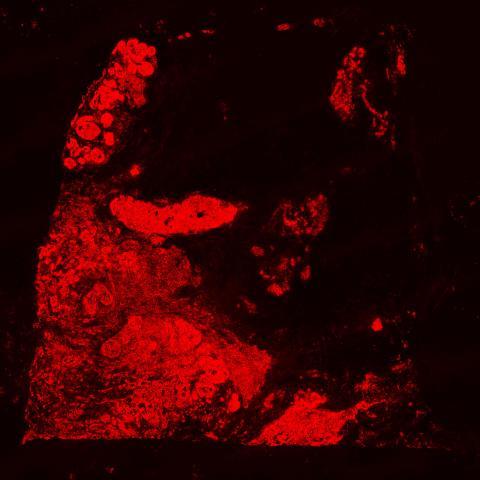 Bild 2: Bild som visar hur forskarna kan fånga genaktivitet ned på en glasyta som helt överlappar med de strukturer som man normalt ser i mikroskåpet. Detta är          forskarnas metod.