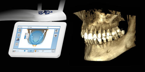 Extended volume size for Planmeca ProMax® 3D Classic