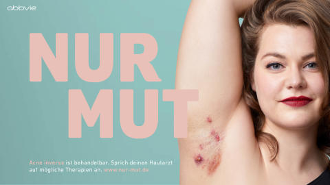 Nur Mut! Neue Website für Patienten mit Acne inversa