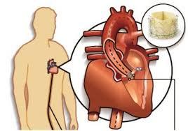 Transcatheter Aortic Valve Implantation (TAVI) Market Growth Analysis with Top Industry Experts as Abbott, Medtronic, Boston Scientific Corporation, Meril Life Sciences Pvt. Ltd, Edwards Lifesciences Corporation