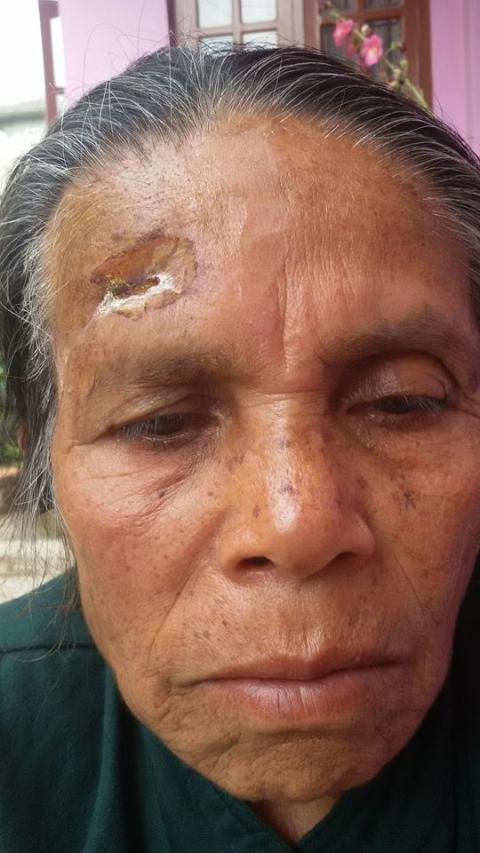 Mohans Mutter nach dem Erdbeben