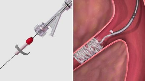 Transcatheter Embolization and Occlusion Devices Market Know the Future Opportunities Till 2027 |  Integer Holdings Corporation, Merit Medical Systems, Obex