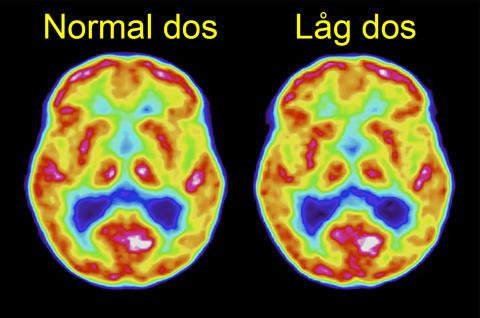 Hjärnavbildning med FDG-PET