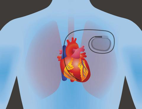 Pacemakers market accounted to US$ 5,485.4 Mn in 2018 and is expected to grow at a CAGR of 8.1% during the forecast period 2019 - 2027