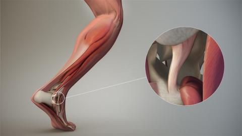 Soft Tissue Repair Market Is Estimated to Grow at A CAGR of 8.3% During The Forecast Period from 2018 To 2025