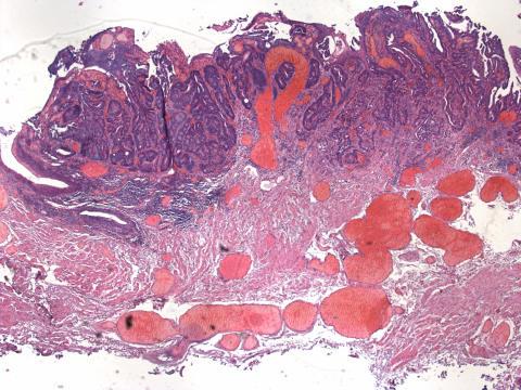 Rektumkarzinom - Malignitätsgrad 1 (histologisches Foto)