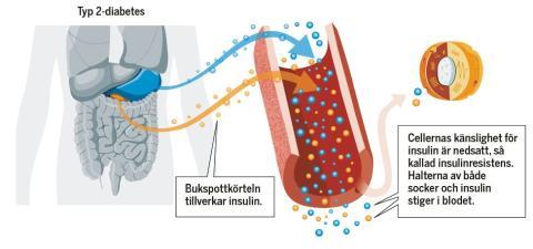 Diabetes uppmärksammas i ny kampanj av Hjärt-Lungfonden