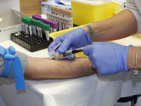 1 000 liv kan räddas varje år om alla regioner organiserar prostatacancertestning