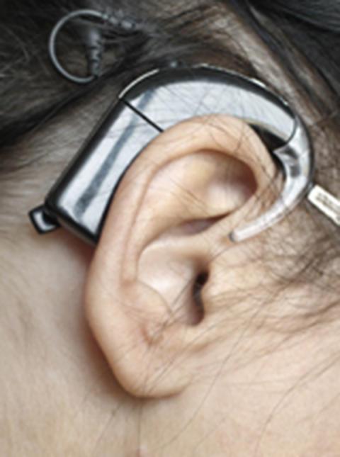 Hörselimplantat effektivt även för långtidsdöva
