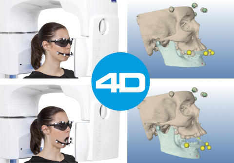 Planmeca announces advanced Planmeca 4D™ Jaw Motion tracking system