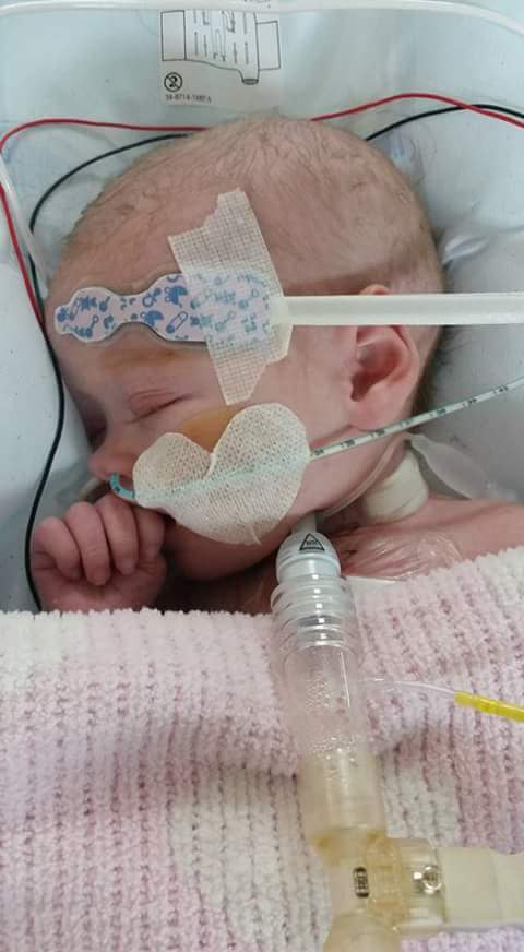 Parents of baby given just 20% chance of survival back charity campaign