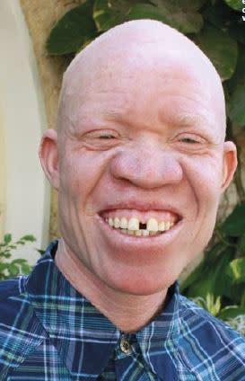 Barn med albinism lever farligt i Tanzania