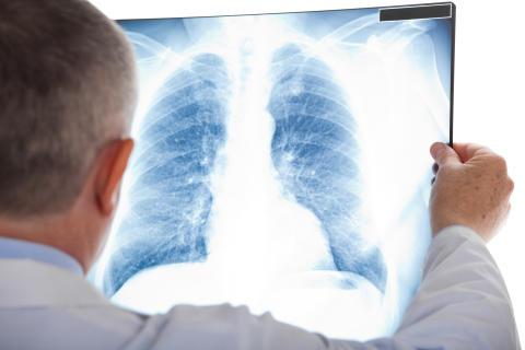 Internationella radondagen 7 november uppmärksammar hälsorisker med radon
