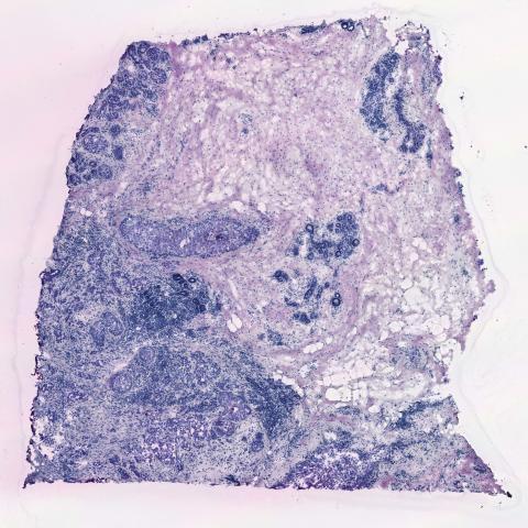 Bild 1: Normal analys i mikroskåp med infärgning. Denna föreställer bröstcancervävnad.