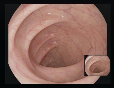 Innenansicht eines sauber gespülten Darms während der Koloskopie.