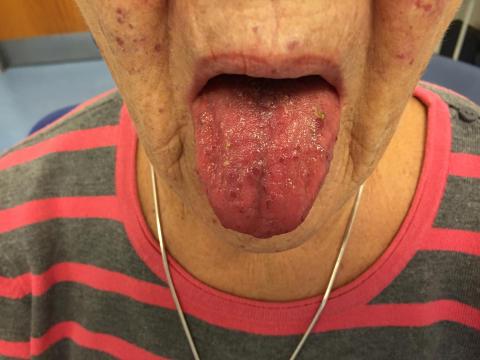 Oslers sjukdom