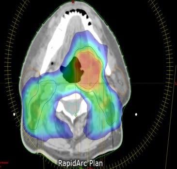 Intensifierad strålbehandling vid huvud- och halscancer gav inte bättre resultat