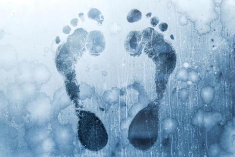Frostalarm am Fuß: Das Raynaud-Syndrom
