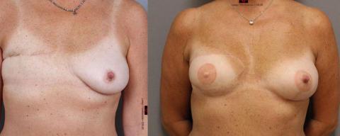 Bröstrekonstruktion vid bröstcancer